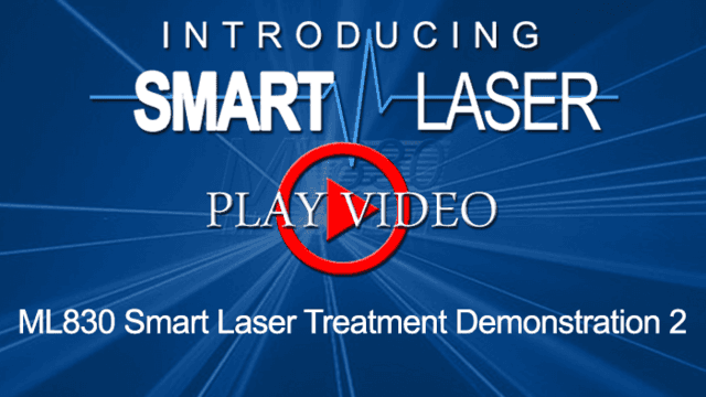 SmartLaserVideo10-700x394.png