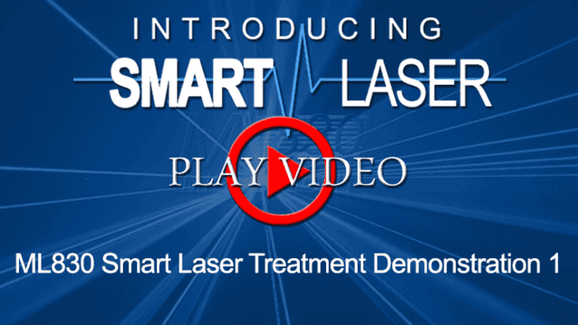 SmartLaserVideo11-700x394.png